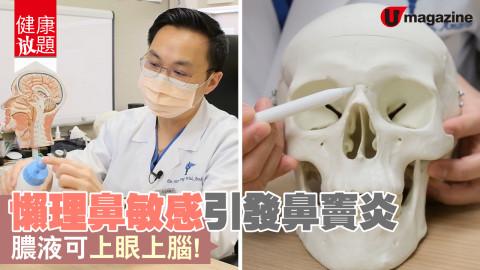 【健康放題】鼻敏感患者都慣咗轉季就流鼻水,但原來唔理佢都有風險?