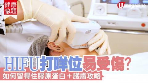 【健康放題】Hifu 打中邊度容易傷神經線?貪靚人士小心!